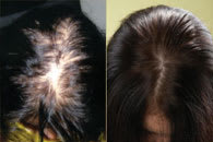 Female Laser Hair Growth Treatment before and after