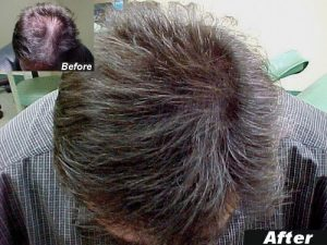 Hair Thickening Fibres