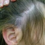 Strand by Strand Surgical female after