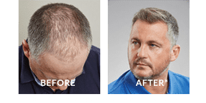Darren Gough Before After Hair Loss