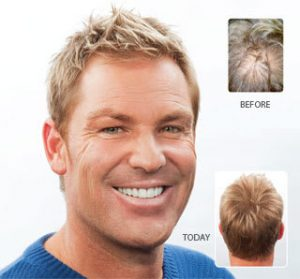 Shane Warne Hair Loss Treatment Results
