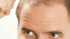 How To Stop Hair Loss - male