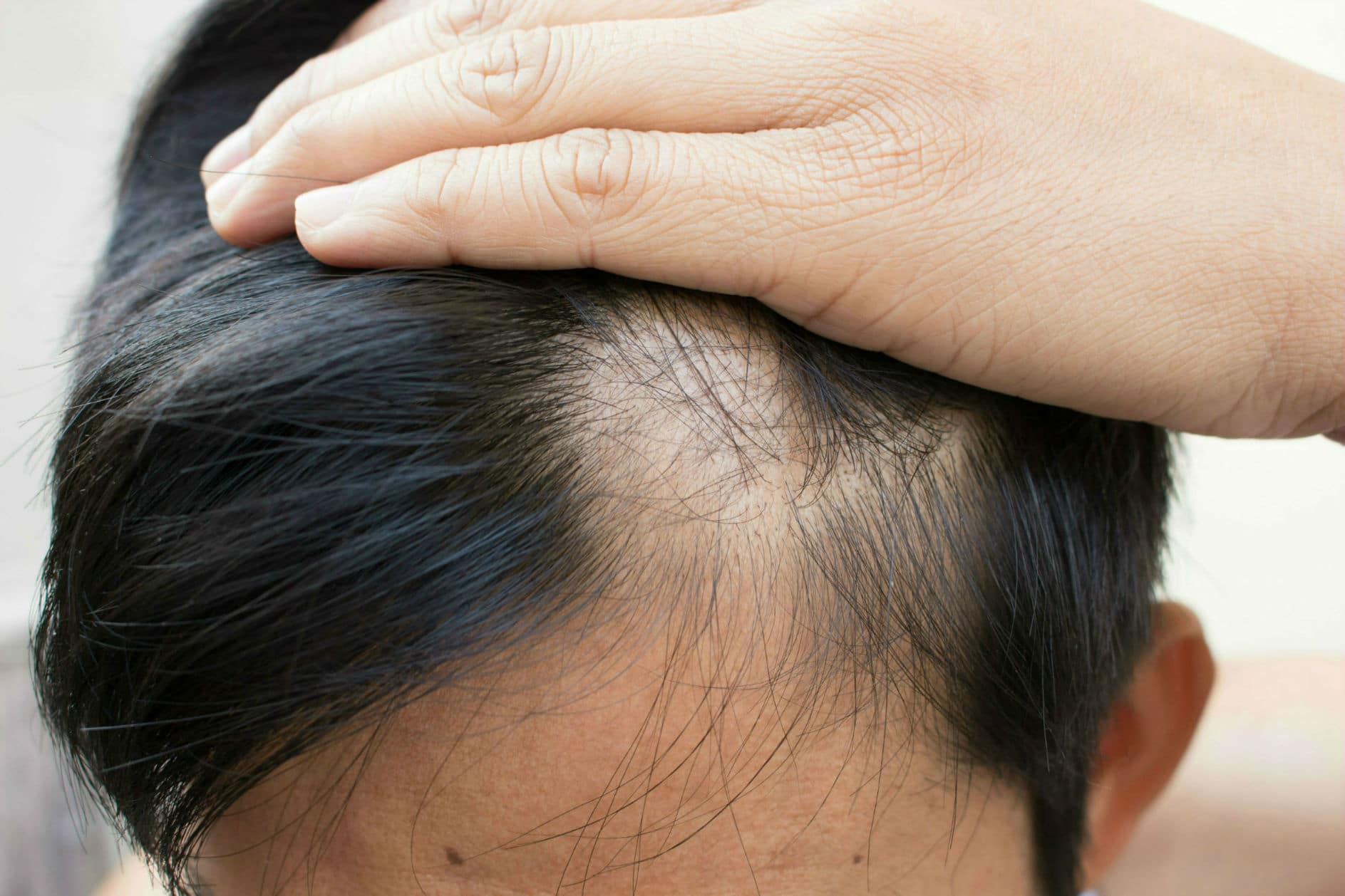 Oral Minoxidil Treatment Tablets For Hair Loss Alopecia