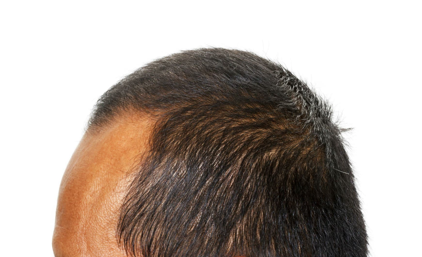 Widows Peak Treatment - How to Get Rid of a Thinning Hairline