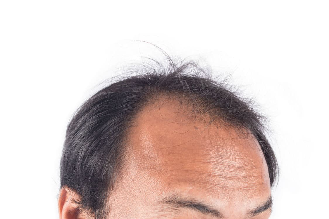 Male Pattern Baldness Stages Awesome Design Ideas