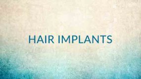 Hair Implants