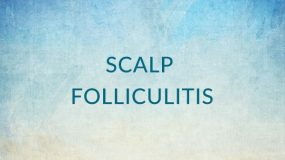 Scalp Folliculitis