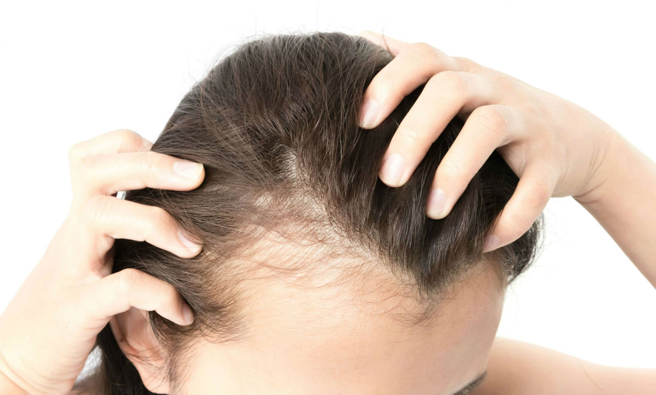 Hair Transplants For Women - Best Female Procedures by Surgeons