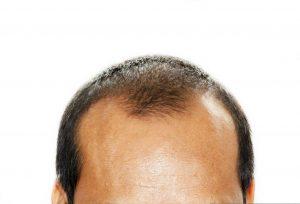 Hair Thinning at Crown