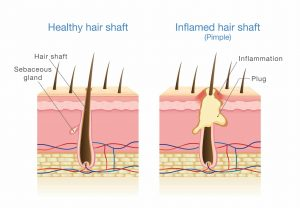 Inflamed Hair Shaft