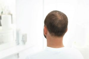 Best Haircut for a Receding Hairline - Options For Thinning / Baldness
