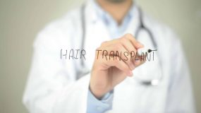 The FUE Hair Transplant Cost That Anyone Can Afford