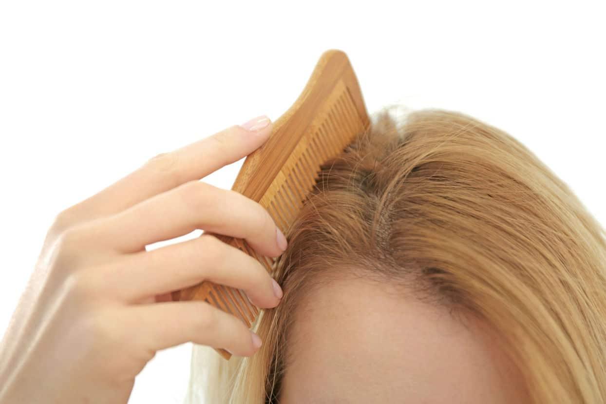 FUE Hair Transplants Melbourne - Follicular Unit Extraction