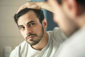 Hair Loss Conditions Explained - Causes, Symptoms & Treatments