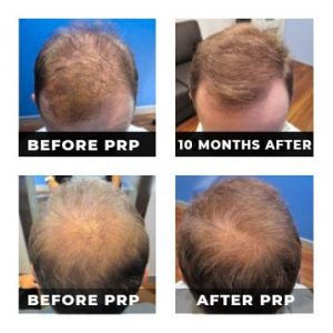 Prp Male Hair Loss Treatment Platelet Rich Plasma Injection Therapy