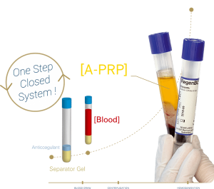PRP System for Optimal Platelet Recovery